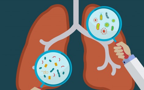 Bird-related Lung Disease Seen to Affect Japanese Man's Sarcoidosis
