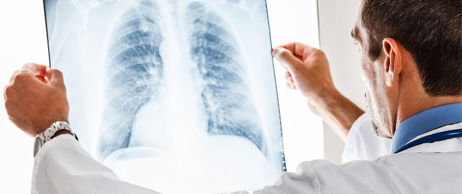 Sarcoidosis: Lung Biopsy in Certain Cases May Help Control Complications