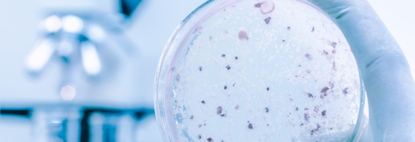Mycobacterium Tuberculosis Linked to Sarcoidosis, a Statistical Study Shows