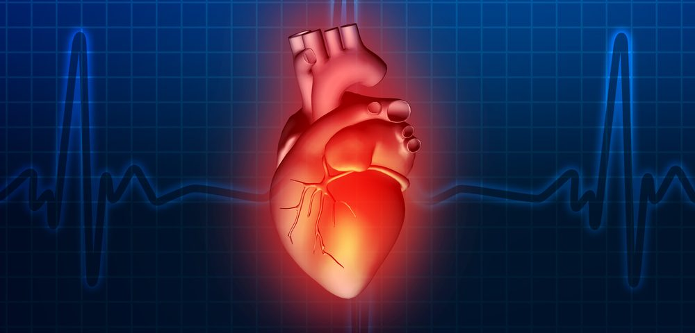 Risk Factors in Cardiac Sarcoidosis May Include Aging and Lack of Pacemaker, Study Finds