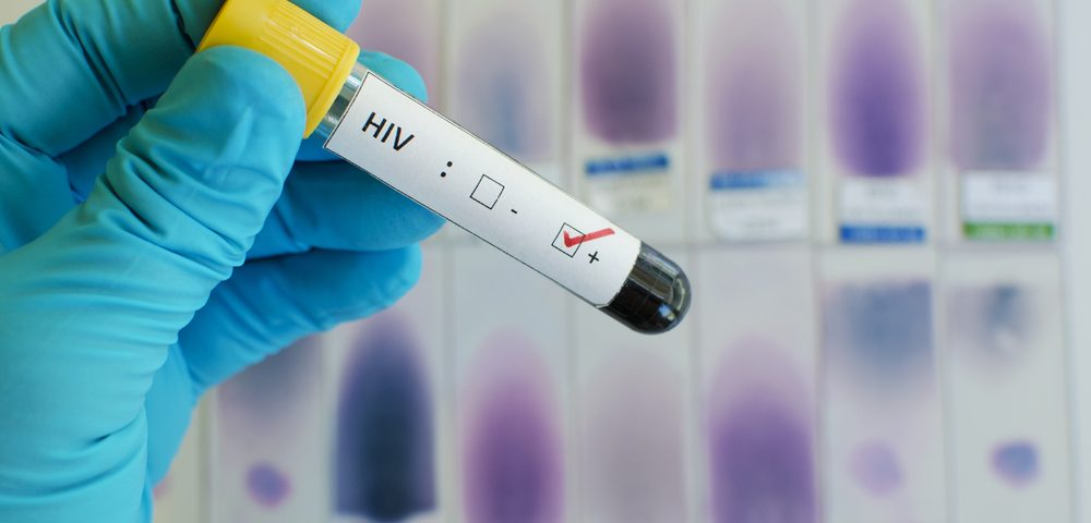 Sarcoidosis Developed in Patient Being Treated for HIV Infection, Case Report States