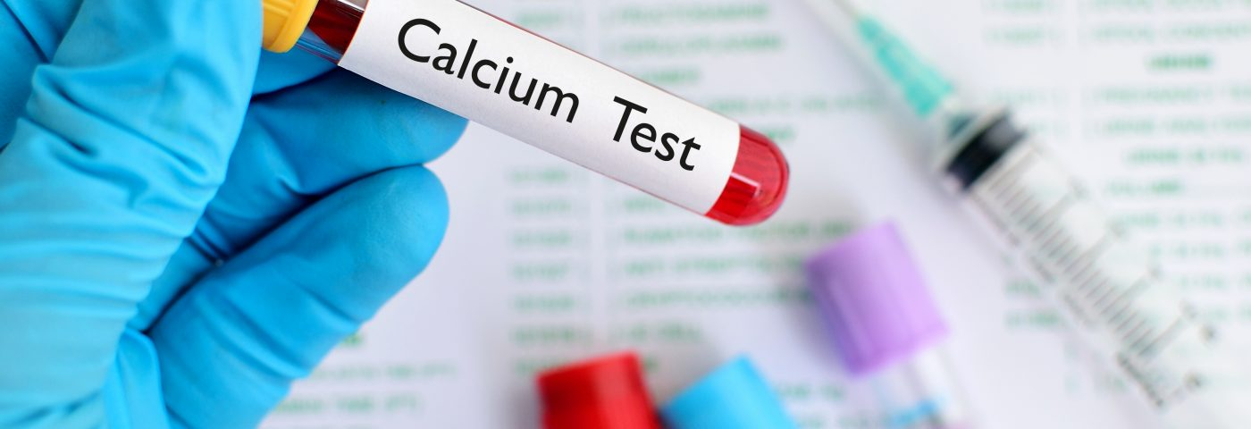 High Calcium Levels in Blood Could Be a Sign of Sarcoidosis, Case Study Suggests