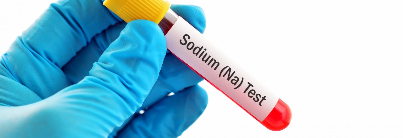 Low Sodium Levels Linked to Sarcoidosis, Case Study Suggests