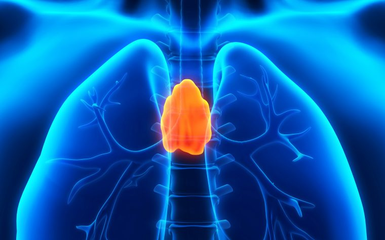 thymus in sarcoidosis
