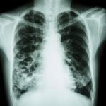 sarcoidosis and tuberculosis