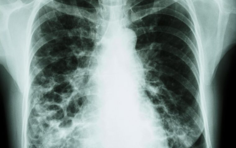 rare lung disease and sarcoidosis