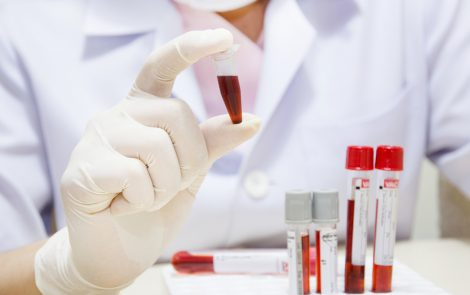 Serum Levels of 4 Proteins Enable Monitoring of Sarcoidosis Activity, Study Reports