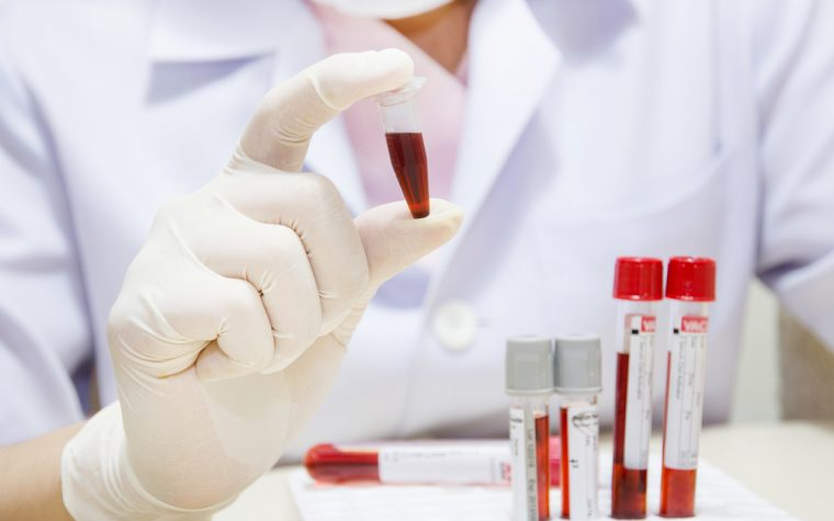The blood marker sIL-2R can be used assess disease severity and progression in sarcoidosis.