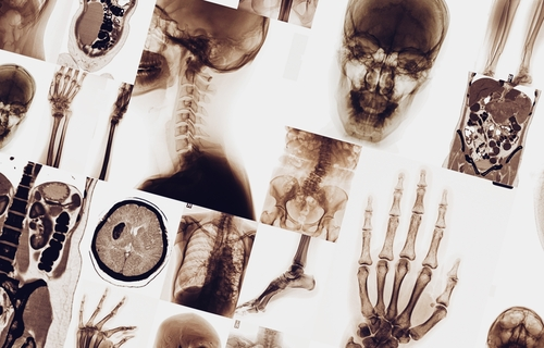 Bone Involvement in Sarcoidosis Patients Linked to Multi-organ Disease
