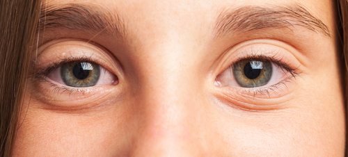 Ocular symptoms in sarcoidosis