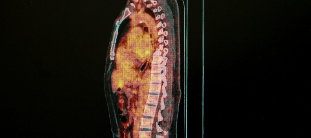 MRI Screenings Show Spinal Sarcoidois More Common Than Previously Thought, Study Reports