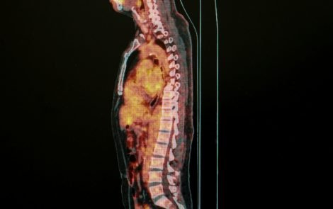 First Total-body PET Scanner Promises to Increase Sensitivity of Diagnosis and Treatment of Sarcoidosis, Other Diseases