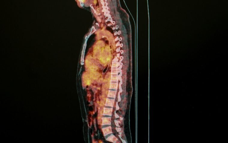 PET scan advancements