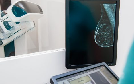 Cutaneous Sarcoidosis Linked with Recurrence of Breast Cancer in Case Study
