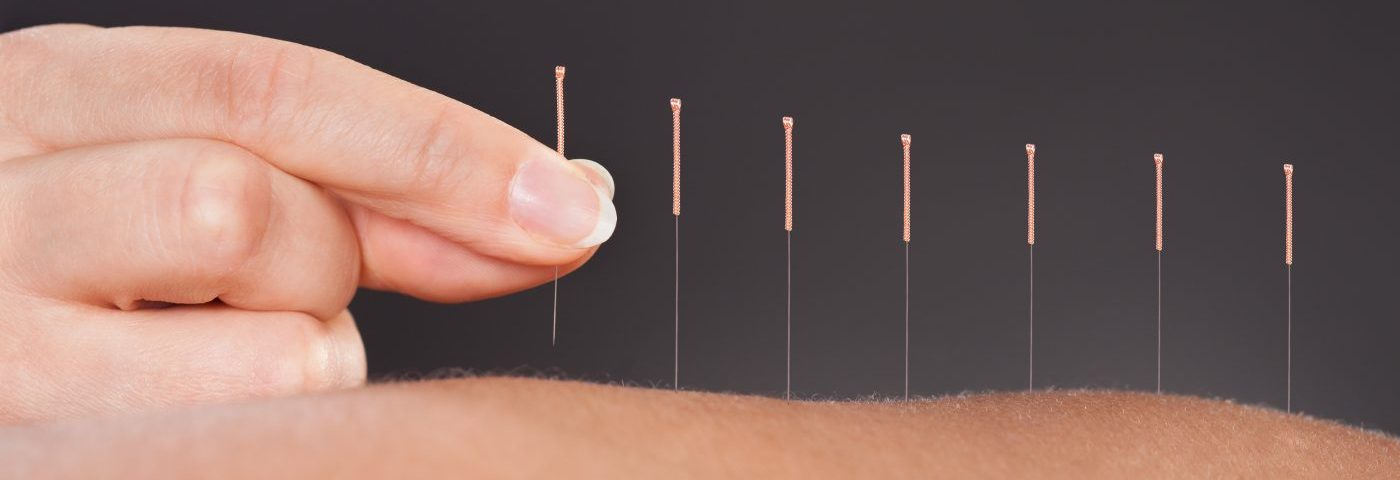 I Tried Acupuncture to Help Manage Sarcoidosis Symptoms