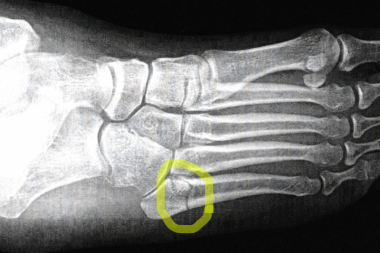 X-ray of Kerry's right foot, with fracture to fifth metatarsal circled